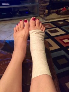 Swelling up...and I wished I hadn't put off that pedicure since I was headed to the foot doc!