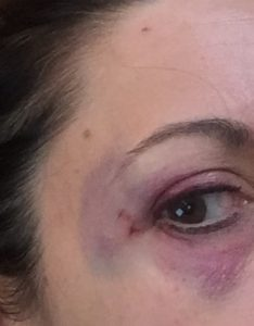 Before and after photo of a black eye cover up! - Reddit